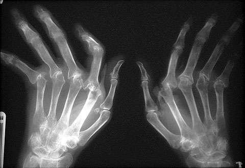 organovo-ucfs-partner-3dbioprinted-tissues-skeletal-disease-research-4