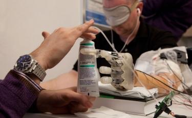 Ecco il dito bionico che restituisce il tattoagli amputati