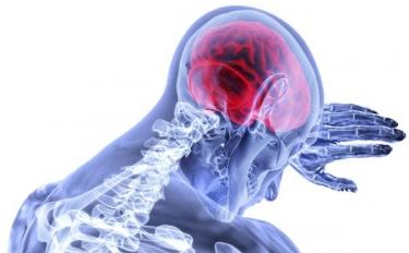 Stampa in 3D di strutture cerebrali per trattare malattie neurodegenerative